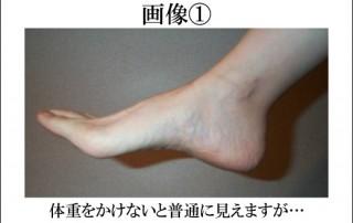pelvis_ninsanpu_c_001
