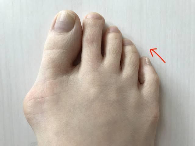 皆さんは自分の足の状態把握しておりますか?