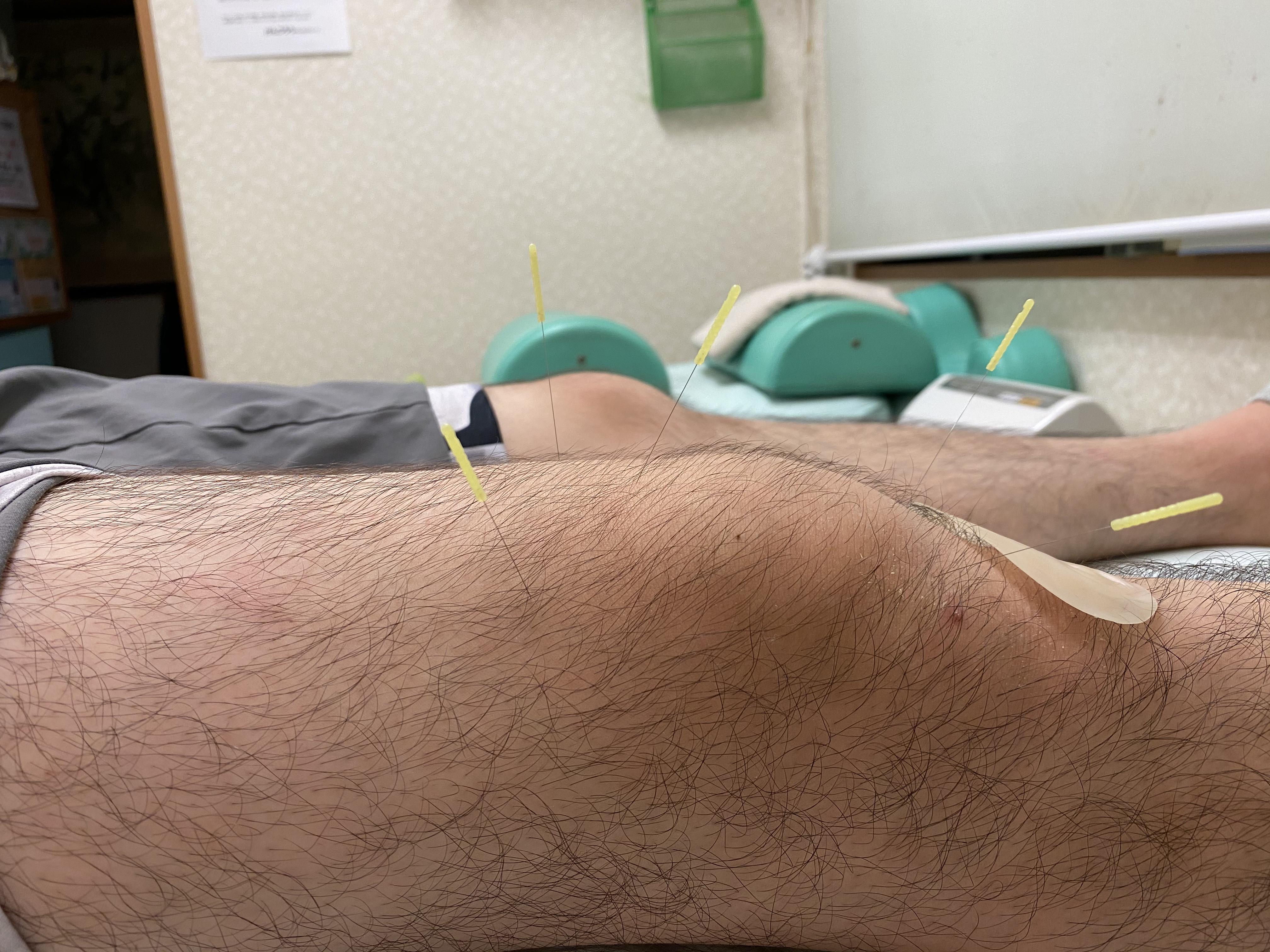 打撲への鍼治療【打撲/鍼灸/大船】